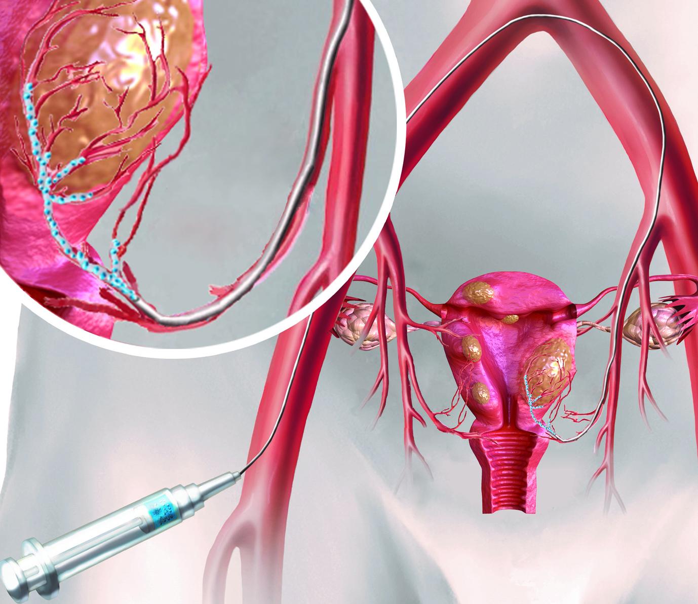 Mikrokügelchen lassen Gebärmutter-Myome schrumpfen